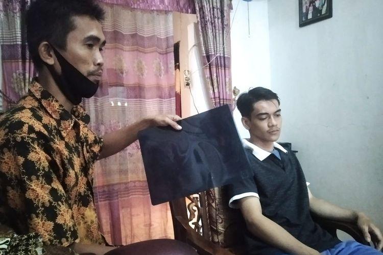 Asep (kanan) korban salah sasaran saat polisi mencari perusuh demonstrasi mahasiswa di Lampung.