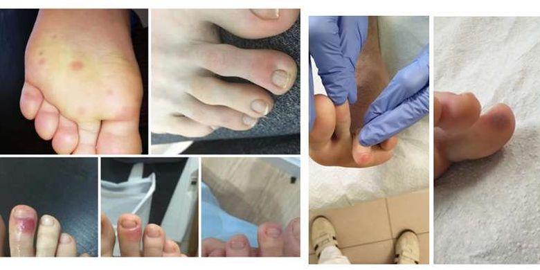 Banyak pasien Covid-19 mengaku memiliki lesi keunguan di sekitar jari kaki sebelum gejala virus corona pada umumnya muncul.