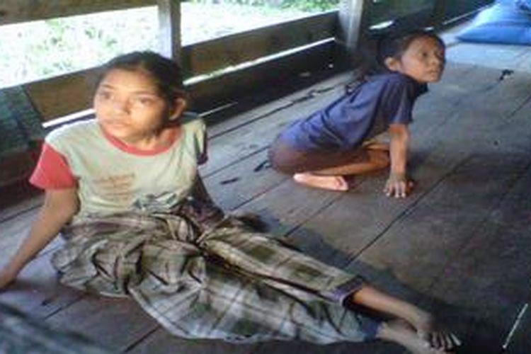Dua bersaudara yang menderita lumpuh di Kabupaten Bone Sulawesi Selatan harus hidup berdua setelah ibunya meninggal dunia 10 tahun lalu dan ayah mereka pergi setelah menikah lagi..