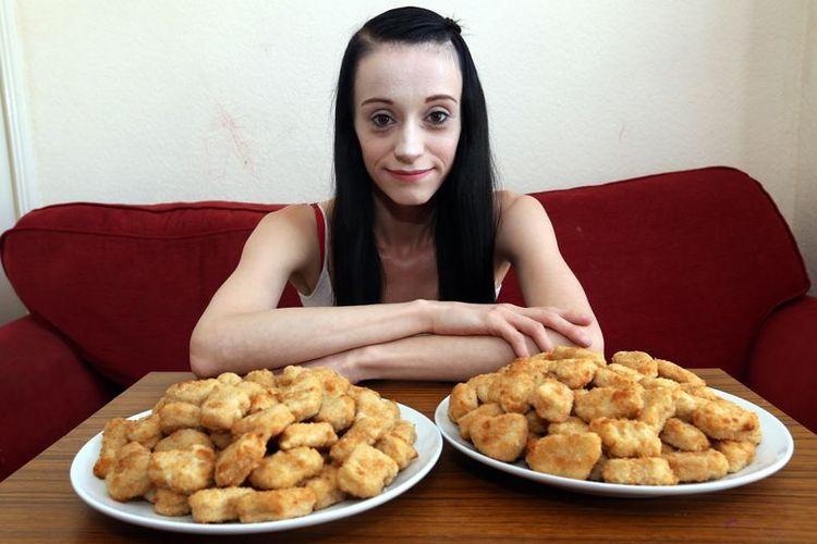 Michaela Harris hanya memakan chicken nugget selama 4 tahun sejak 2016, dan berat badannya turun drastis jadi hanya 35 kilogram.