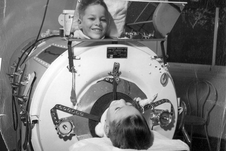 Ilustrasi iron lungs, ventilator pertama yang digunakan pada anak-anak yang terkena polio.