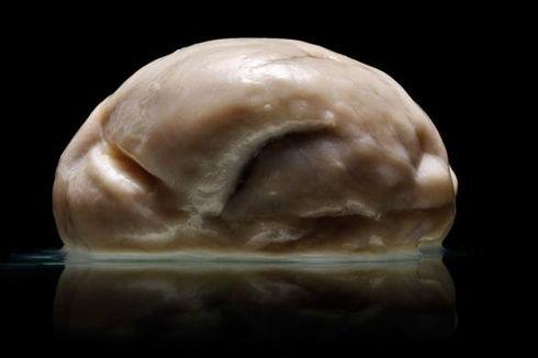 Otak Manusia Paling Aneh yang Pernah Dijumpai