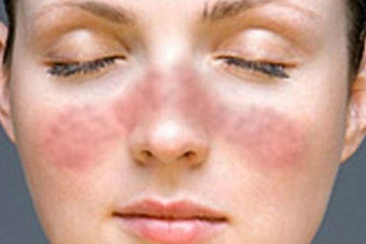 Ilustrasi gejala penyakit lupus