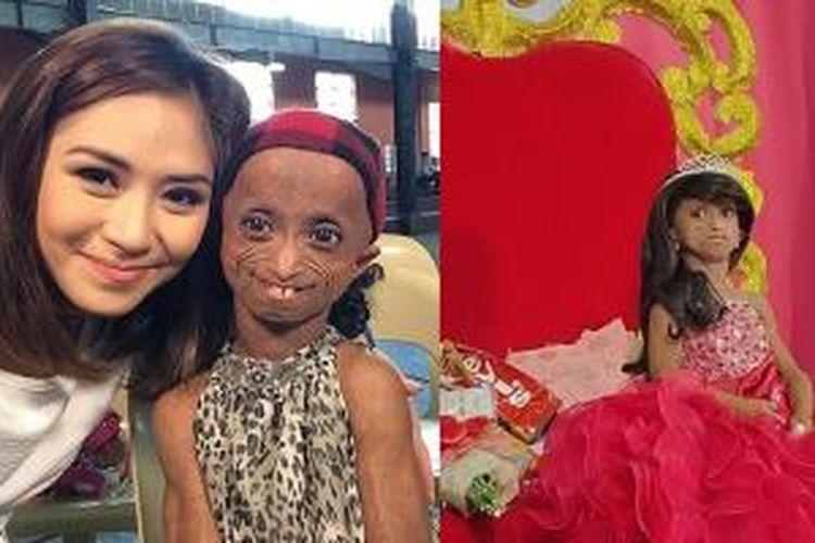 Ana Rochelle Pondare yang mengalami kondisi genetik langka disebut progeria, berpose bersama selebriti idolanya asal Filipina, Sarah Geronimo.