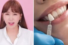 Mau Punya Gigi Seperti Song Hye Kyo, Way Crayon Pop Terkejut Hasilnya Mirip Keledai