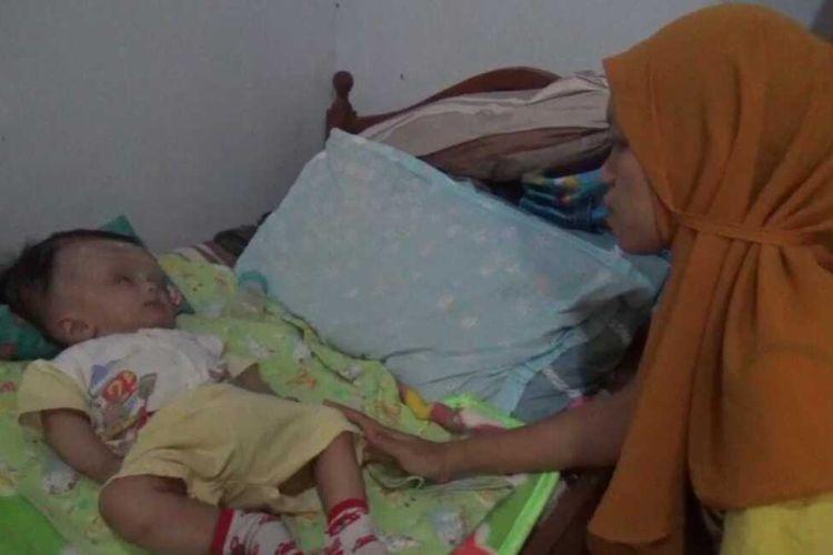 HIDROSEFALUS—Nur Hidayah (23), warga Desa Ketandan, Kecamatan Dagangan, Kabupaten Madiun, Jawa Timur menatap Gibran (7 bulan), anaknya yang menderita penyakit hidrosifalus.