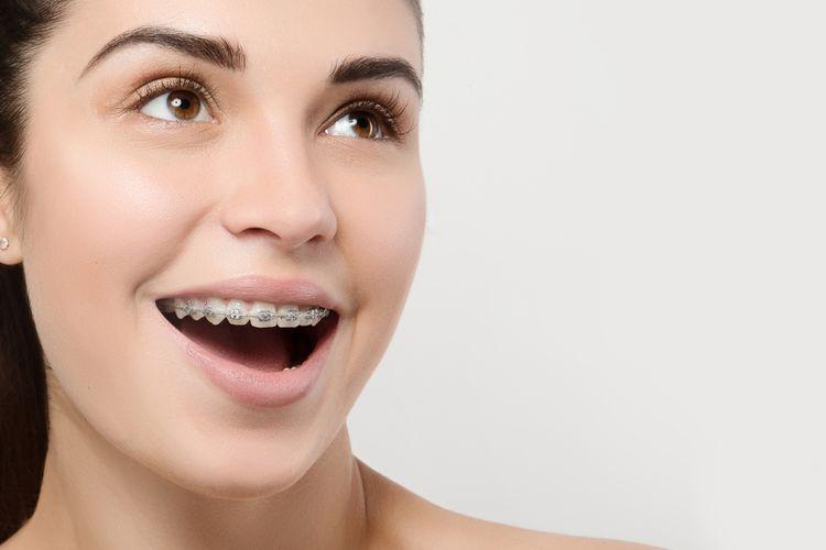 Ilustrasi kawat gigi