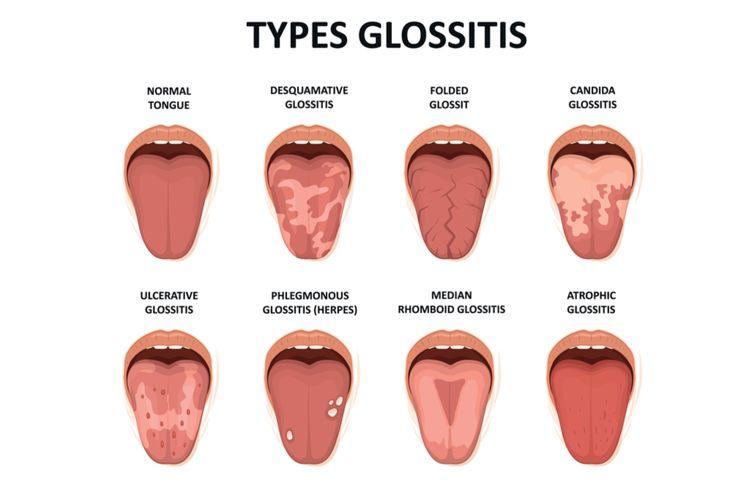 ilustrasi glositis