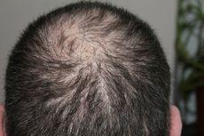 8 Kebiasaan Buruk yang Bikin Rambut Cepat Tipis, Pria Harus Tahu