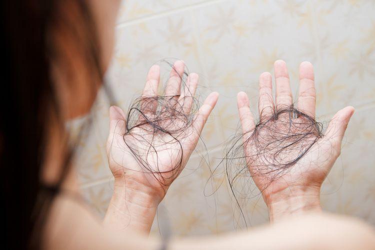 Rambut rontok juga bisa disebabkan tubuh kekurangan vitamin dan mineral tertentu.