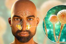 Kenali Penyebab Penyakit Jamur Hitam yang Mengintai Pasca-Covid-19