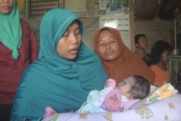 Siti Komariah menngendong bayinya Nur Haqiqi yang terlahir tanpa lubang anus dan bibir sumbing. Siti Komariah beharap ada bantuan untuk mengoperasi anaknya sebab ia dan suaminya tidak punya biaya, Rabu (9/1/2019).