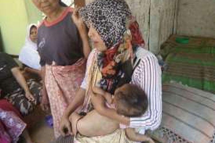 Bayi atas nama Ulfia Riska mengalami bercak-bercak merah dan putih setelah disuntik imunisasi, difteri dan titanus oleh bidan desa setempat.