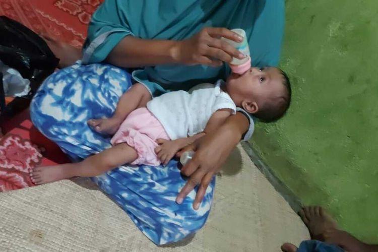 Humaira (1,5 tahun) digendong ibunya Habsah (40) di rumah mereka di Desa Cot Seumiyong, Kecamatan Kuta Makmur, Kabupaten Aceh Utara, Minggu (6/6/2021)