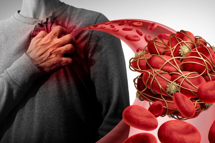 Ilustrasi trombosis atau penggumpalan darah.