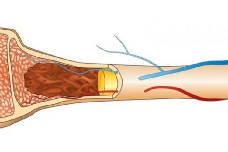 Ilustrasi tulang rapuh.