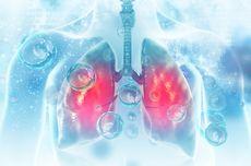 Teknik Pemindaian Unik Ini Temukan Kerusakan Paru-paru akibat Covid-19