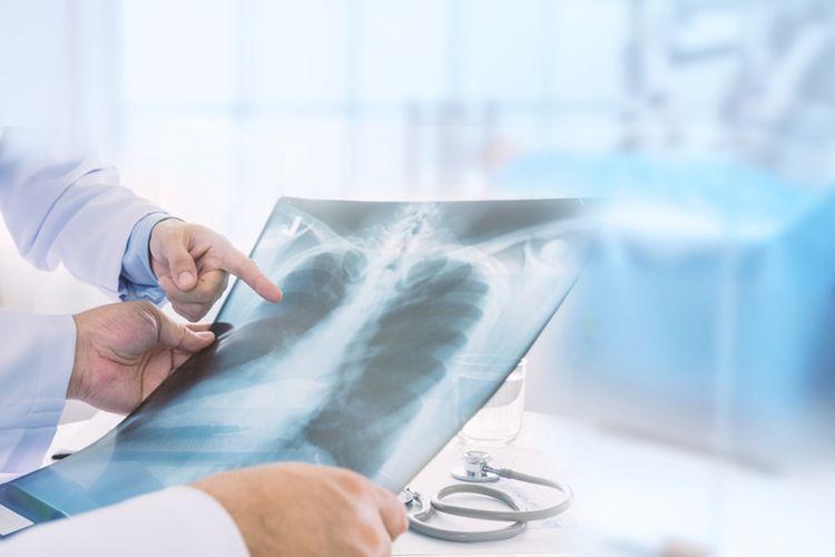Dokter spesialis paru Dr Sita Laksmi Andarini, PhD, Sp.P(K) mengatakan, faktor utama pemicu penyakit ini adalah konsumsi rokok yang mencapai prevalensi 64,9 persen.
