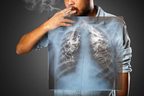 Perokok Pasif Bisa Terkena Kanker Paru, Kok Bisa?