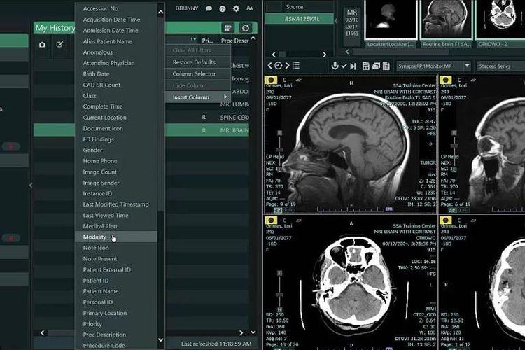 Ilustrasi hasil pemindaian otak pasien stroke dengan teknologi terkini di RS PON.