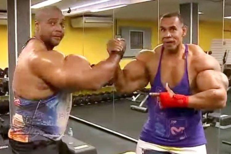 Tony Hulk Geraldo (kiri), dan Alvaro Conan Pereira (kanan), dua bersaudara asal Brasil yang tergila-gila dengan Arnold Schwarzenegger, hingga menyuntikkan steroid ke otot bisep mereka.