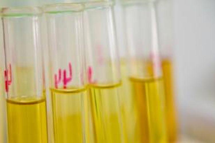 Ilustrasi sampel urine