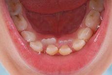 Gigi Anak yang Berlubang Tak Segera Ditambal, Apa Risikonya?