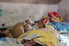 Derita Bayi Aiyla Idap Atresia Bilier, Perut Membesar dan Sulit Bernapas, Butuh Bantuan Dermawan