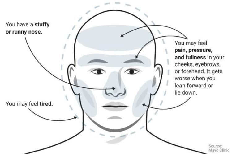 Sakit kepala sinusitis