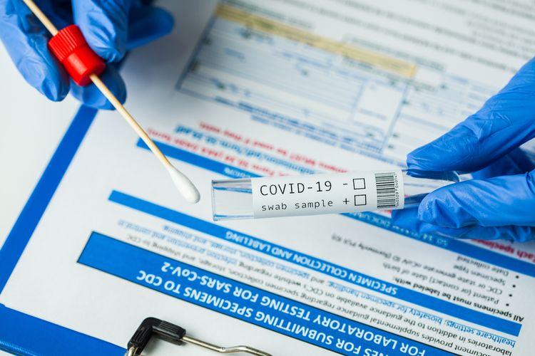 Ilustrasi tes Covid-19 di rumah akhirnya mengantongi izin otorisasi darurat FDA. Tes virus corona berbasis swab atau usap ini dapat dilakukan secara mandiri di rumah, diharapkan dapat menekan penyebaran infeksi.
