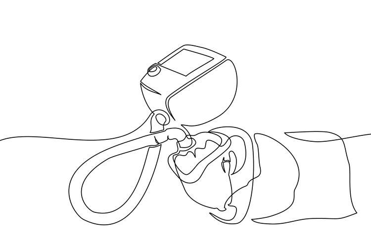 Ilustrasi pasien dengan bantuan ventilator