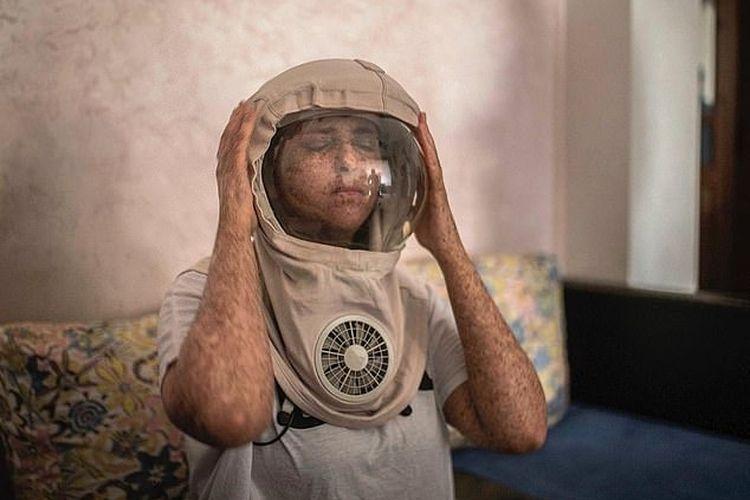 Fatima Ghazaoui, gadis asal Maroko yang mengidap kelainan genetik langka Xeroderma pigmentosum, harus memakai helm astronot tiap keluar rumah di siang hari.