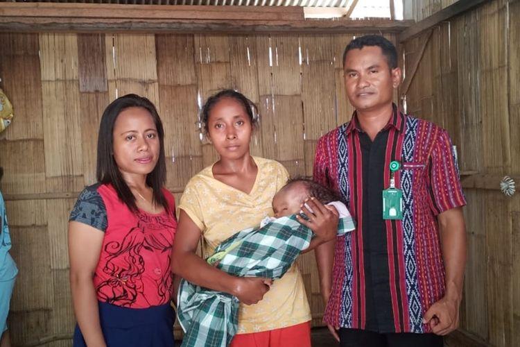 Foto : Paulus Agustinus Rera, bayi yang baru berumur 4 bulan asal desa Mbengu, Kecamatan Paga, Kabupaten Sikka, Flores, NTT menderitaHidrosefalussejak lahir.