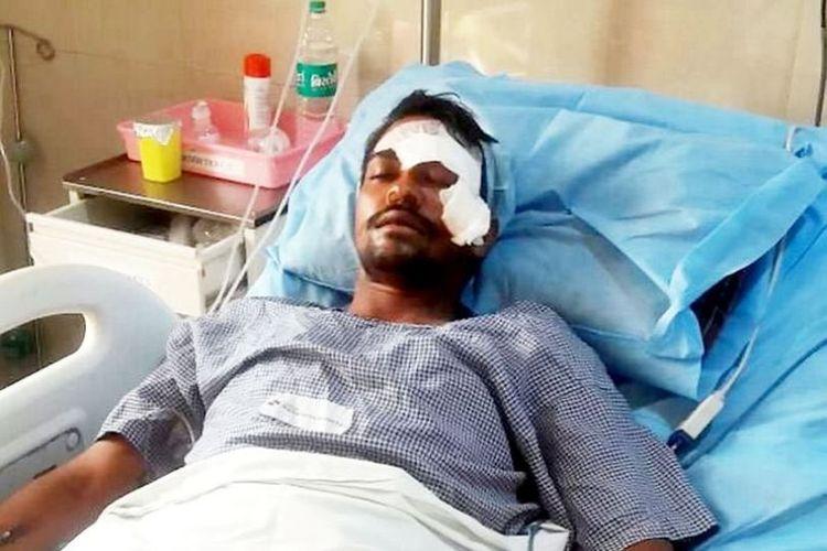 Ashok Nilmakar harus kehilangan separuh penglihatannya setelah mata kirinya ditikam dalam sebuah perkelahian.