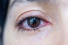 Mata Berair