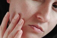 Benarkah Pori-pori Kulit Wajah Bisa Dikecilkan? Simak Penjelasannya