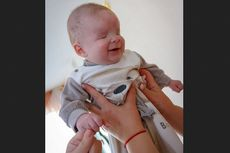 Terlahir Tanpa Bola Mata, Bayi Ini Cari Orangtua Angkat yang Mau Merawatnya
