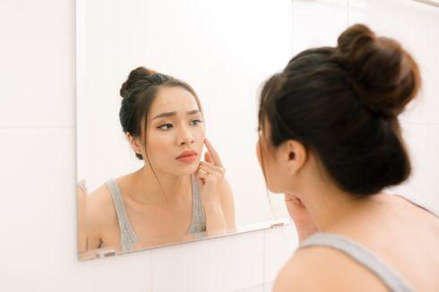 Bisa Berdampak Negatif pada Mental, Bagaimana Cara Aman Atasi Jerawat?