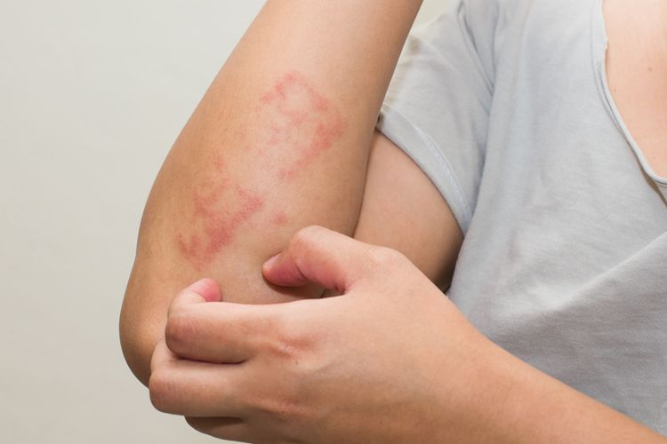 Ilustrasi ruam pada kulit