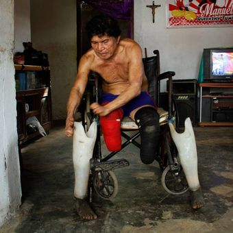 Zeth, orang yang pernah mengalami kusta, membetulkan kaki palsunya di rumahnya di Kelurahan Pandu, Kecamatan Bunaken, Manado.