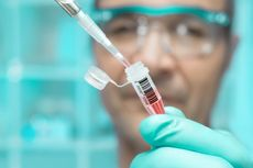 1,7 Juta Orang Terinfeksi Corona, Berikut Kabar Pengembangan Vaksin Covid-19 di Dunia