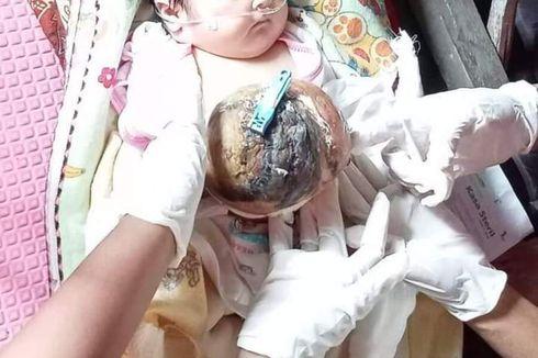 Mari Bantu M Fareski, Bayi di Riau yang Menderita Omphalocele