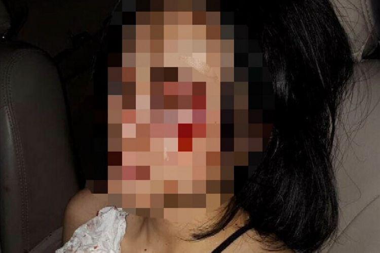 Foto wanita korban begal yang beredar di aplikasi pesan singkat, Senin (6/11/2017).
