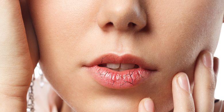 Ilustrasi bibir kering, bibir pecah-pecah