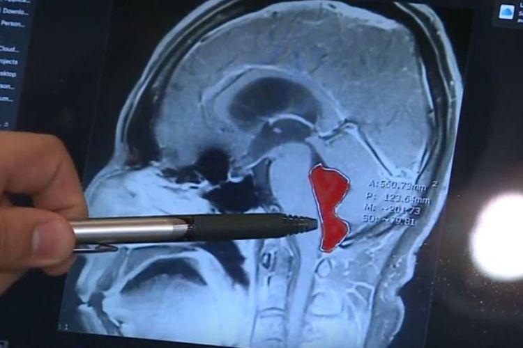 Hasil pemindaian MRI terhadap Gerardo, seorang pria di Meksiko, mengungkapkan terdapat cacing pita yang ada di otaknya. Menyebabkannya sakit kepala hingga muntah selama 10 tahun terakhir.