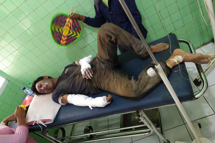 Salah satu korban letusan balon di Kediri, Jawa Timur, saat menjalani perawatan di RSUD Pelem, Selasa (22/10/2019).