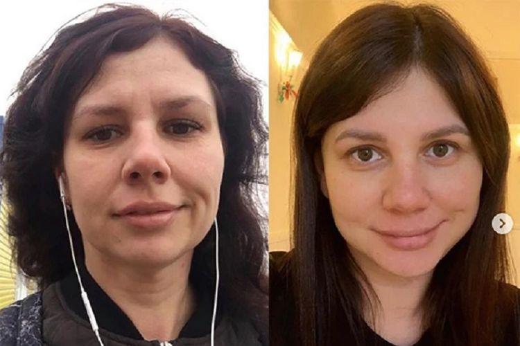 Blogger Rusia Marina Balmasheva sebelum dan sesudah operasi plastik. Perempuan 35 tahun itu menjadi sensasi pada tahun lalu setelah hamil dan menikahi anak tirinya yang kini berusia 21 tahun.