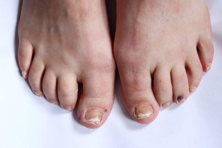 Ilustrasi kuku kaki bergelombang