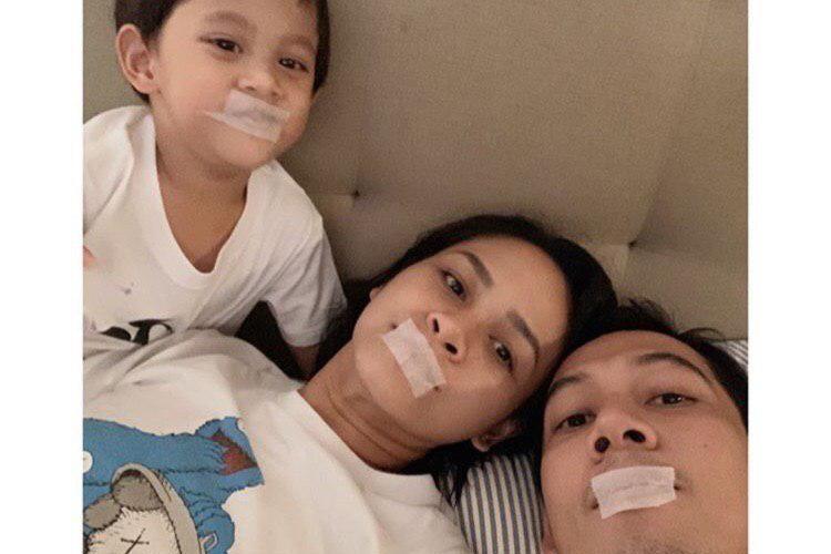 Andien dan keluarga membiasakan diri untuk tidur dengan mulut diplester.