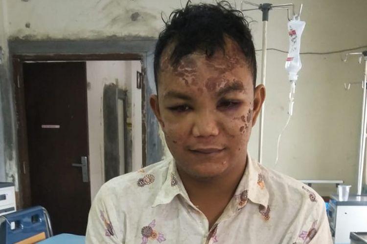 Harismail alias Ujang (25) korban aksi salah tangkap yang diduga dilakukan oleh oknum polisi kondisinya kini mulai membaik setelah empat hari menjalani perawatan di rumah sakit Bhayangkara Palembang, Selasa (26/2/2019).